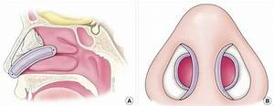 Illustration Of Nasal Packing With An Airway Silicone