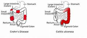 Crohn's Disease Causes and Symptoms You Need to Know