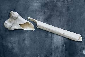 Osteoporosis News - Osteoporosis Medication Risks