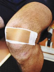 Patellofemoral Taping  Pain Relief Mechanisms
