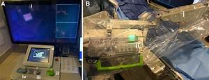 Endovascular Robotic  Feasibility And Proof Of Principle