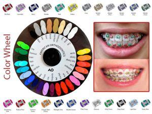 braces colors that make teeth look whiter what color braces make teeth look white best braces colors
