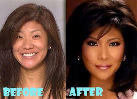 julie chen plastic surgery    nose job lovely surgery celebrity