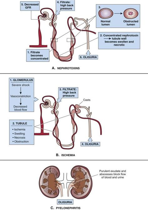 Renal Failure Concept Map.Best Acute Renal Failure Ideas And Images On Bing Find What You