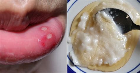 Canker Sore Cover by Cure Canker Sores Fast With These 8 Natural Remedies