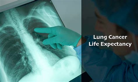 lung cancer life expectancy understanding stages  lung