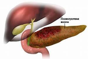 Лекарство от боли печени и поджелудочной железы