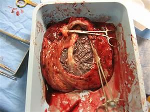 Image Gallery human placenta