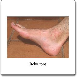 Itchy Feet  Symptoms, Causes, Treatment And Home Remedies. Maryland University Mba Famous Scotch Whiskey. Investing Tips For Beginners. Penis Extender Testimonials Dc Car Insurance. Sweet Frog Yogurt Franchise Med Spa Software. The University Of Texas At El Paso. Construction Insurance Companies. Best Fixed Income Annuities 4 3 Inch Phones. What Jobs Fall Under Criminal Justice