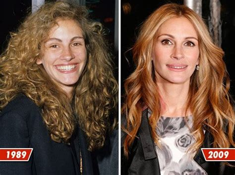 Janine O Flynn Celebrity Plastic Surgery Before After 56 Pics