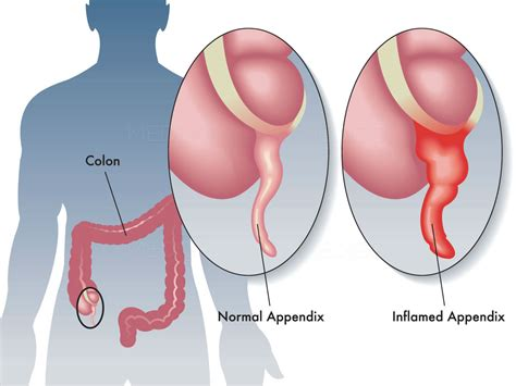 About Appendectomy Cost Procedure Experts