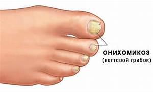 Доктор мясников о грибке ногтей отзывы