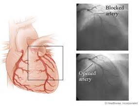 Coronary Angioplasty  Heart Diseases Angioplasty
