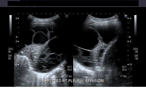 gallery  high resolution ultrasound color doppler