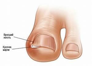 Гной на пальце ноги от грибка