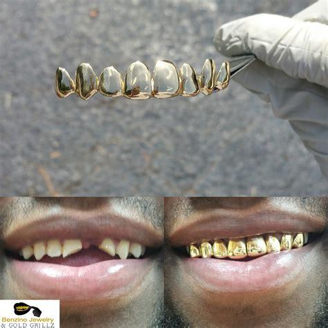 Pictures  Benzino Jewelry & Gold Grillz