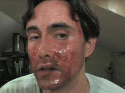 Laser skin resurfacing - YouTube