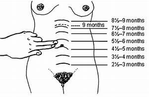 Obstetric Trauma
