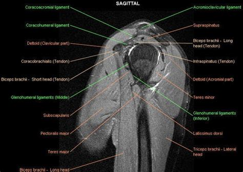 Shoulder: MRI, radiographical, and illustrated anatomical