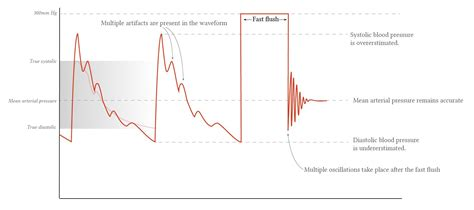 Arterial Line Dynamic Response Testing