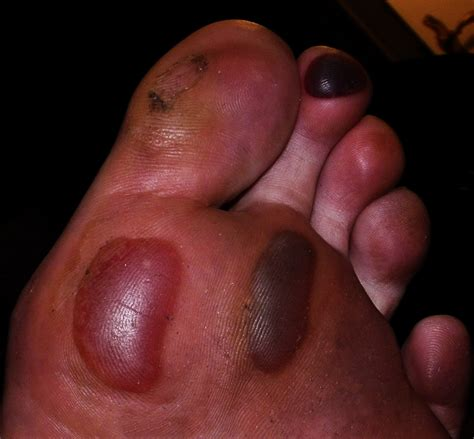 Blood Blister On Pinterest What Causes Fever Blisters