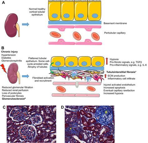 renal disease pathophysiology  treatment contributions