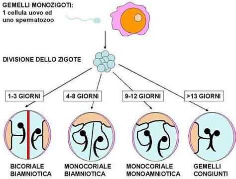 gemellare bicoriale monocoriale monoamniotica - Gemelli Monozigoti Diversi