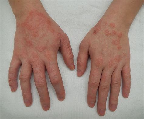 Dermatitis Wikipedia
