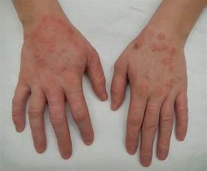 Dermatitis - Wikipedia Dermatitis