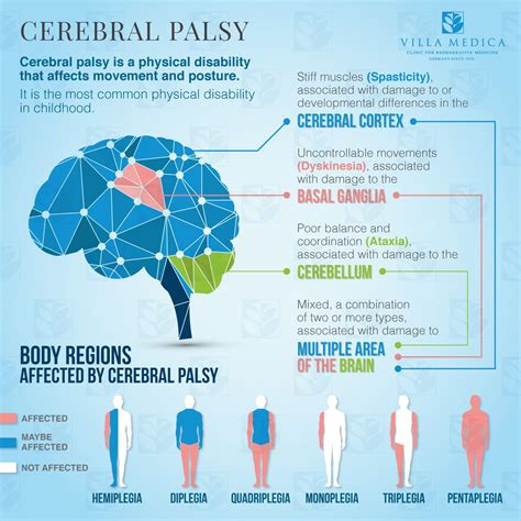 Cerebral Palsy Hope Through Cell Therapy  Villa Medica. My Family Essay For Kids Template. Job Description For Babysitter Template. Current Cv Templates. Resume Format For Download. Student Class Schedule Maker Template. Social Security Benefits Estimator Spreadsheet. Sample Of Nursing Resume Template. In Kind Donation Receipt Template
