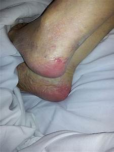what is a bed sore 28 images wound care a treatment With black bed sores