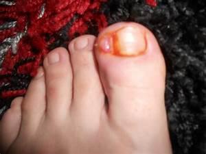 Грибок ногтей на ногах у детей чем лечить в домашних условиях