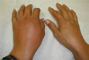 Healthy And Beauty Tips  Cures For Gout