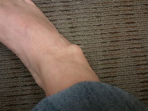 Why Do You Have Lump On Your Ankle Md Healthcom
