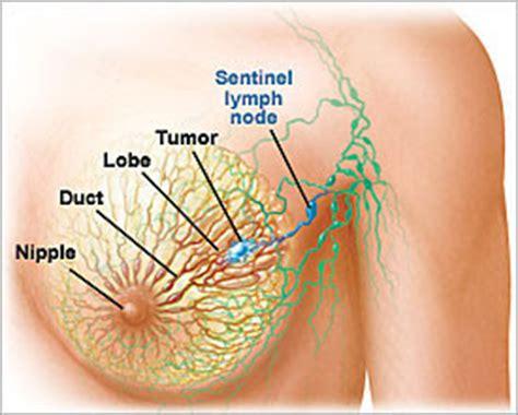 Uitzaaiingen bij borstkanker