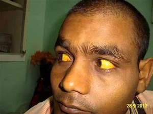 Jaundice Cured by Homeopathy Serum Bilirubin 44.7 Dr.Ravi ...