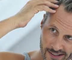 Can Rogaine (Minoxidil) Make Hair Loss Worse? | Limmer HTC