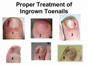 Proper Treatment Of Ingrown Toenail