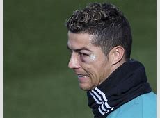 Cristiano Ronaldo shows off cool scar and black eye in