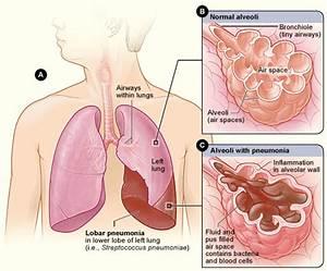 Pneumonia - Simple English Wikipedia, the free encyclopedia  Pneumonia Asbestos