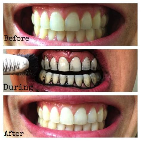 Home Teeth Whitening by 10 Tips To Whiten Your Teeth Naturally Home Remedies