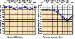 Sensory Hearing Loss