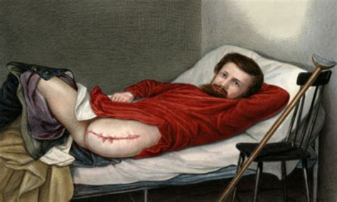 Civil War Surgery The Grisly Photos That Show How Wounded