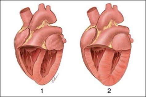 Ontstoken hartspier