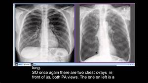 Chest X-rays - Smoker U0026 39 S Disease  Copd
