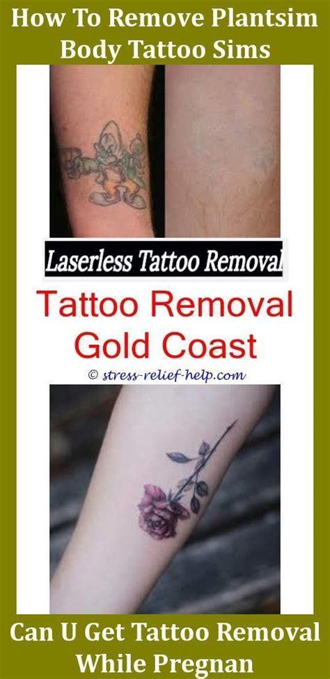 laser treatment  tattoo removal tattoo removal sydney