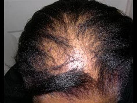 What does CCCA Alopecia (Scarring Alopecia) Look Like