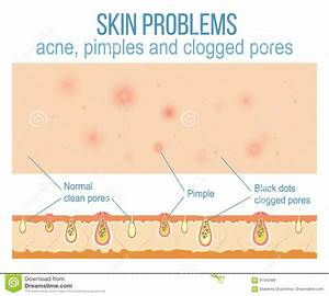 Skin And Pores Stock Vector  Illustration Of Face  Pore