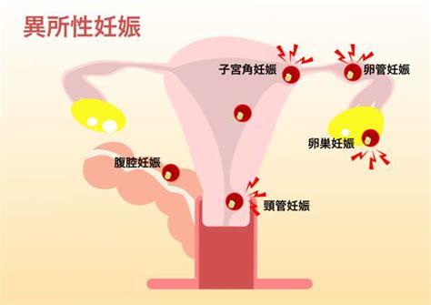 子宮 外 妊娠 と は