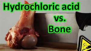 Hydrochloric Acid Vs  Bone Total Decomposition  Ud83c Udf56